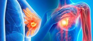 cancer de seno y su tratamiento con immunocal
